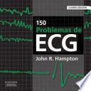 150 problemas de ECG