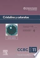 Cristalino y cataratas. 2011-2012