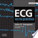 ECG en la práctica
