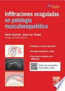 Infiltraciones ecoguiadas en patología musculoesquelética