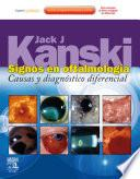 Signos en oftalmología + ExpertConsult