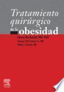 Tratamiento quirúrgico de la obesidad